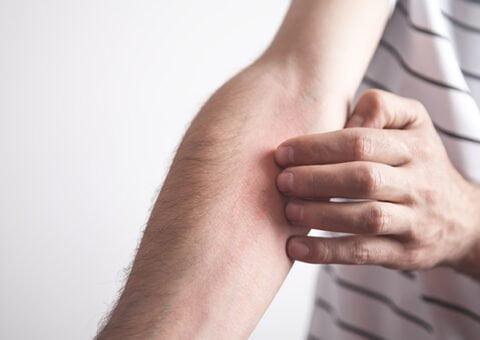 Kbt-behandling i mobilen kan förbättra atopiskt eksem